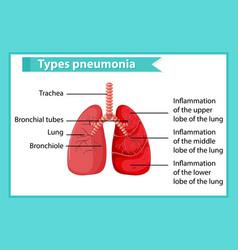 Scientific medical pneumonia vector