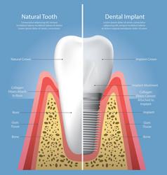 human teeth and dental implant vector image