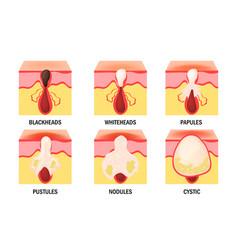 Acne types set skin disease dermatology vector