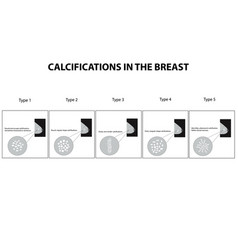 Classification calcifications in mammary vector