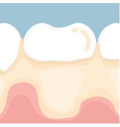 Dental plaque vector