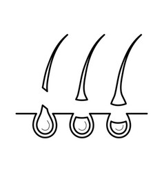 hair removed from the skin surface without bulb vector image