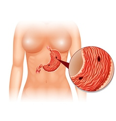 Stomach Ulcer diagram in woman vector image vector image