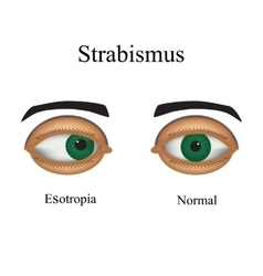 Diseases of the eye - strabismus A variation of vector image
