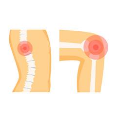 Spine orthopedic pain set vector