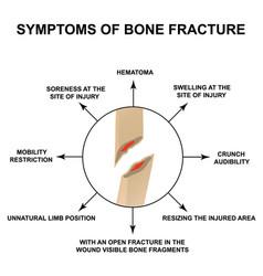 Symptoms bone fracture bone fracture with vector