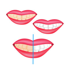 Effect of whitening toothpaste is shown on vector