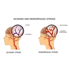 ISCHEMIC AND HEMORRHAGIC STROKE vector