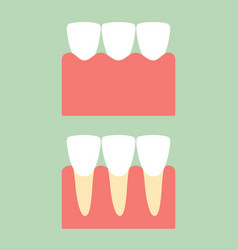 Healthy incisor tooth on gum for dental care vector