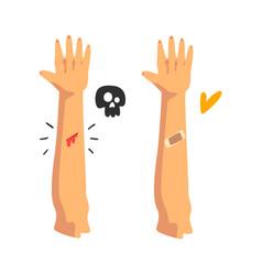 Bleeding wound on hand sticking plaster vector