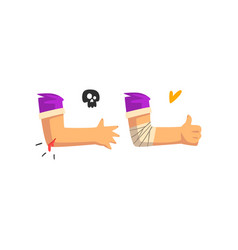 Wounded elbow with blood oozing physical injury vector
