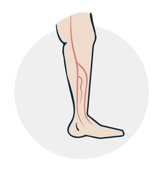 Leg with varicose veins vector