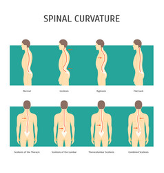 cartoon back with scoliosis card poster vector image
