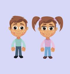 Boy and girl with rash symptom vector