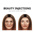 woman having facial beauty injection