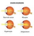 Common vision disorders vector image vector image