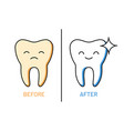 professional teeth cleaning outline vector image vector image