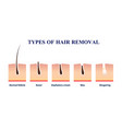 types of hair removal vector image