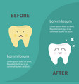 before after infographic healthy smiling tooth vector image vector image