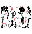 Set Bone Fracture Icon vector image
