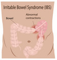 irritable bowel syndrome ibs in large intestine vector image