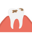 decay and destroy tooth or dental caries vector image vector image