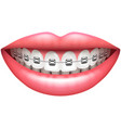 teeth with braces woman smile isolated on white vector image vector image