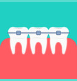 teeth braces icon vector image