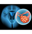 Ovarian cancer in human vector image vector image