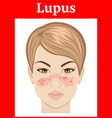 lupus vector image vector image