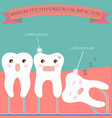 Wisdom Teeth Horizontal Impaction vector image vector image