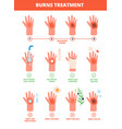 skin burn burned hand treating protection burns vector image vector image