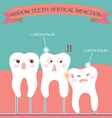 Wisdom Teeth Vertical Impaction vector image vector image