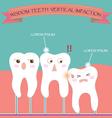 Wisdom Teeth Vertical Impaction vector image