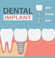 infographics human teeth and dental implant vector image