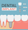 infographics of human teeth and dental implant vector image vector image