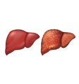 Liver of healthy person Liver patients with vector image vector image