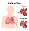 pneumonia concept background realistic style vector image vector image