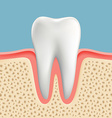 human tooth with caries vector image