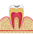 tooth structure in cross section with caries to vector image