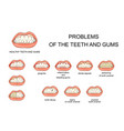 problems of the teeth and gums vector image vector image