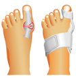 Big toe injury vector image vector image