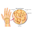wrist joint fractures vector image