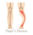 paget disease icon cartoon style vector image vector image