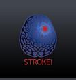 brain stroke vector image