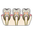 teeth with nerve and tooth root view in colored vector image vector image