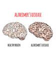 alzheimer disease memory loss medicine vector image vector image