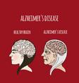 alzheimer disease dementia medicine vector image vector image