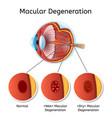 macular degeneration medical scheme vector image
