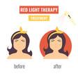 laser skin rejuvenation red light therapy vector image